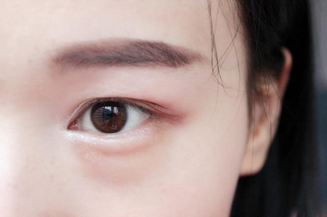 治療去眼袋有風險嗎